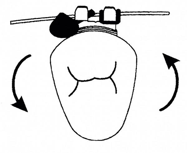 Rotationsmodule